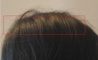 卡通渲染之头发高光(anisotropy)的实现(URP)